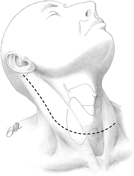 What is Neck Dissection | ENT Doctor Cape Town
