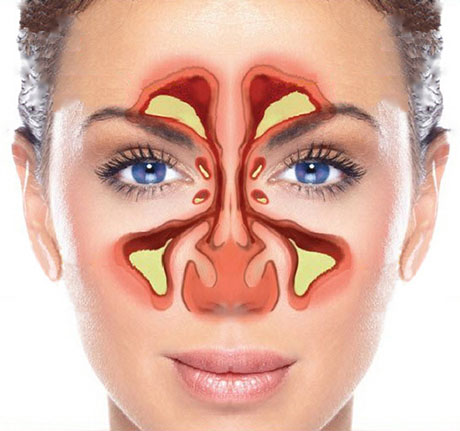 Sinuses and Sinusitis | ENT Doctor Cape Town