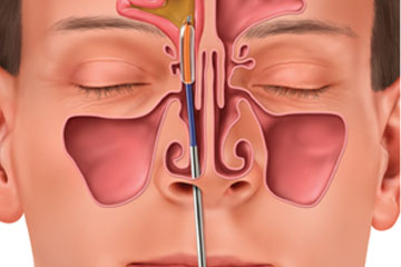 Functional Endoscopic Sinus Surgery | ENT Doctor Cape Town
