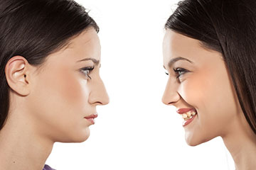 Rhinoplasty | ENT Doctor Cape Town