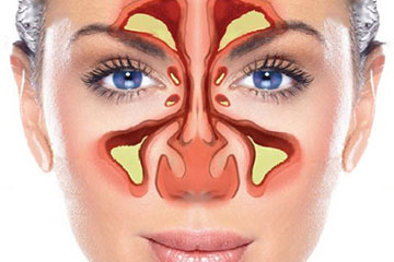 Sinusitis | ENT Doctor Cape Town