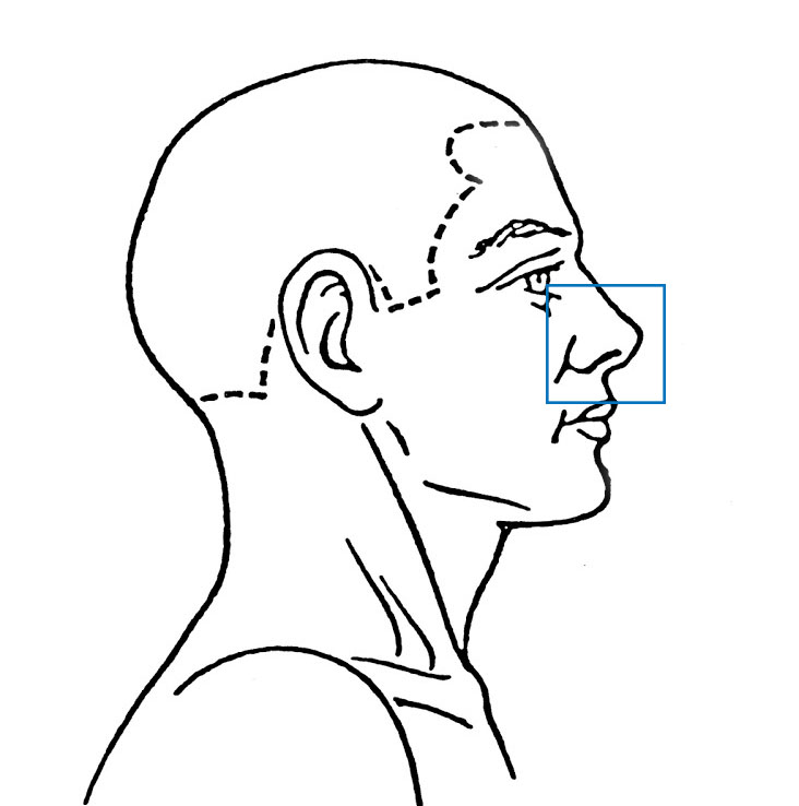 Nose Conditions | ENT Doctor Cape Town