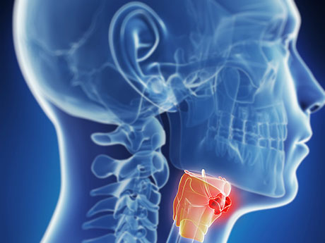 Tumors and Lumps in the Neck and Head | ENT Doctor Cape Town