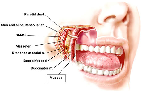 Mucosal Swelling | ENT Doctor Cape Town