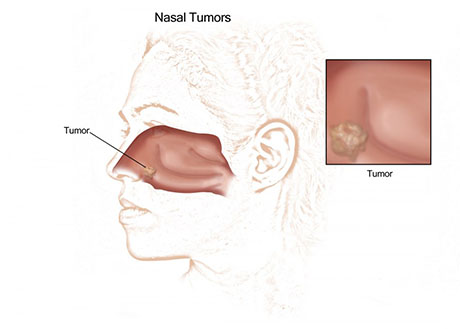 Nasal Cancer | ENT Doctor Cape Town