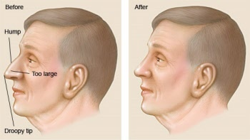 What Is Rhinoplasty | ENT Doctor Cape Town