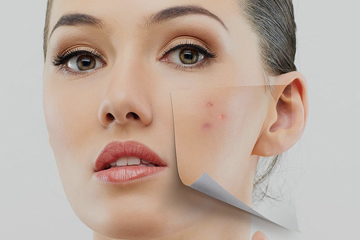 Facial Skin Lesions | ENT Doctor Cape Town